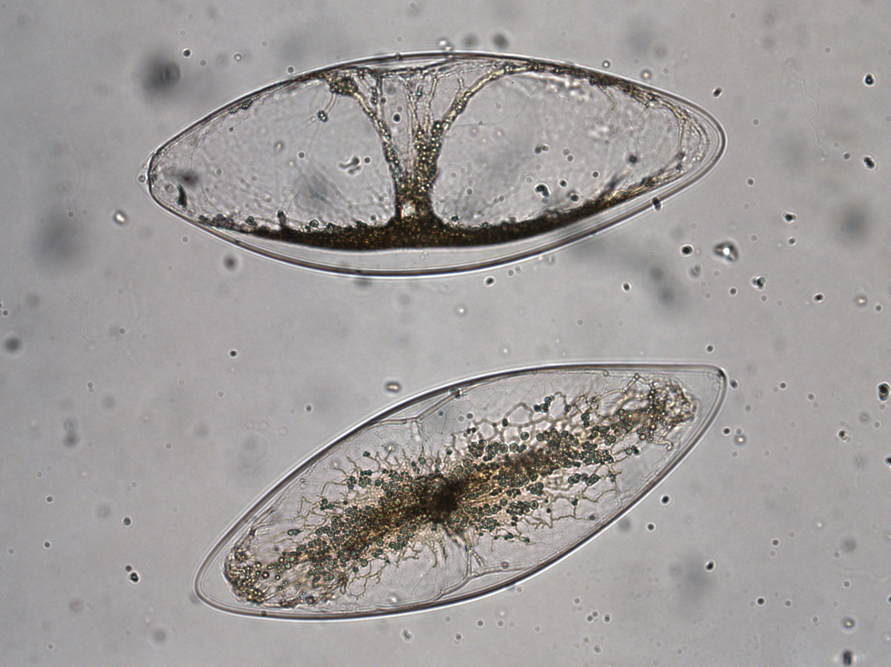 Dinoflagellate cells